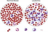 Blood Cancers:  Stem Cell Transplantation Can Save a Life