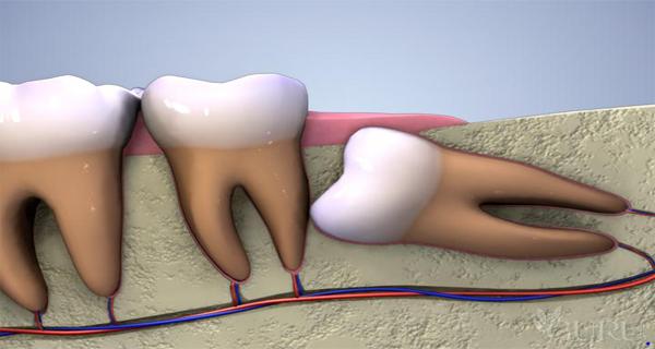 Wisdom-Teeth-Dental-Scam-Why-You-Need-Your-Wisdom-Teeth