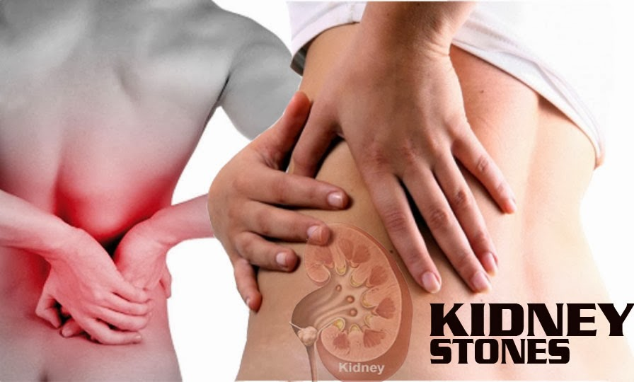 this is how i eliminated kidney stone in 6 days"