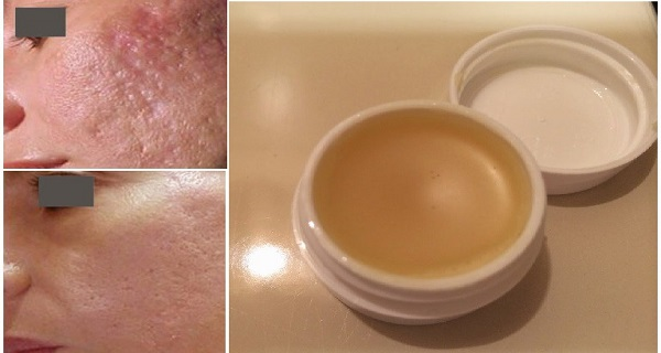 Unique-Homemade-Cream-To-Get-Rid-of-Scars-Completely-Within-2-Weeks
