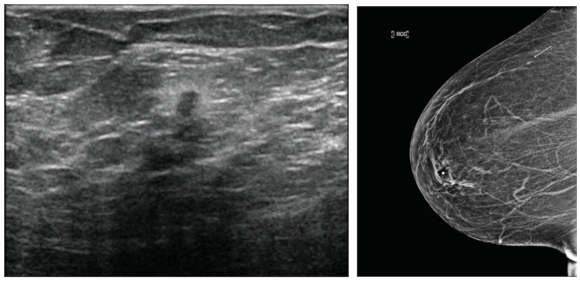 A very small, 3-mm minimal cancer is seen in the ultrasound image (above) and clearly identified on a screening mammogram (right). Cancers found this early on mammograms have the potential of a complete cure.