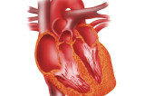 Indian-American leading trials to repair dead heart muscle