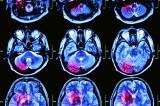 Personal Injury: Traumatic Brain Damage